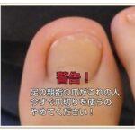 深刻な足の深爪