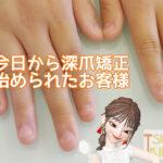 深爪を直す方法があるの知ってる?