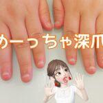 深爪矯正いつか爪に可愛い色を塗りたい