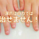 深爪を治すのは自力では無理